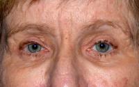Facial Surgery Case 1561 - Eyelid Surgery - After