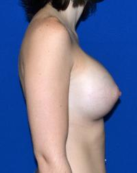 Breast Surgery Case 159 - Breast Augmentation - After