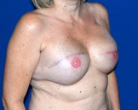 Breast Reconstruction Case 1601 - Two-Stage Reconstruction - After