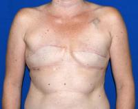 Breast Reconstruction Case 1601 - Two-Stage Reconstruction - Before
