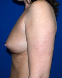 Breast Surgery Case 162 - Breast Augmentation - Before