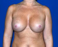 Breast Surgery Case 162 - Breast Augmentation - After
