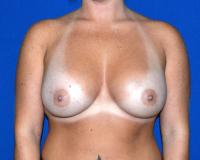 Breast Surgery Case 163 - Breast Augmentation - After