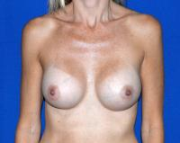 Breast Surgery Case 166 - Breast Augmentation - After