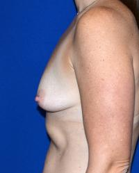 Breast Surgery Case 1721 - Breast Augmentation - Before