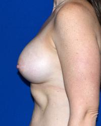 Breast Surgery Case 1721 - Breast Augmentation - After
