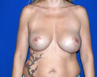 Breast Surgery Case 1731 - Breast Implant Revision - Before