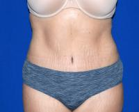 Body Contouring Case 1801 - Tummy Tuck, Flanks, Hips, Waist - After