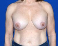 Breast Surgery Case 1931 - Breast Lift with Augmentation - After