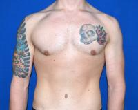 For Men Case 2001 - Male Breast Reduction - After
