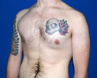 For Men Case 2001 - Male Breast Reduction - Before