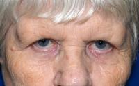 Facial Surgery Case 2041 - Brow Lift - Before