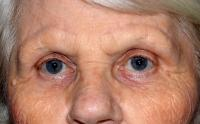 Facial Surgery Case 2041 - Brow Lift - After