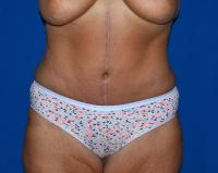 Body Contouring Case 2181 - Tummy Tuck, Flanks, Hips - After