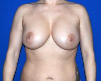Breast Surgery Case 2241 - Breast Implant Revision - Before
