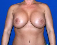 Breast Surgery Case 2241 - Breast Implant Revision - After