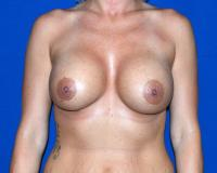 Breast Surgery Case 2311 - Breast Augmentation - After