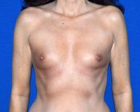 Breast Surgery Case 2321 - Breast Augmentation - Before