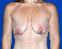 Breast Surgery Case 2351 - Breast Lift with Augmentation - Before