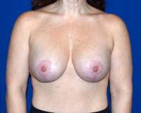 Breast Surgery Case 2351 - Breast Lift with Augmentation - After