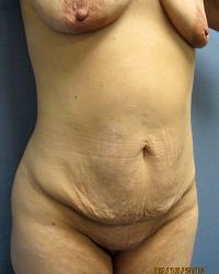After Massive Weight Loss Case 2361 - Body Lift - Before