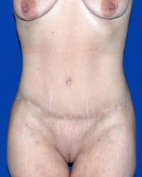 After Massive Weight Loss Case 2361 - Body Lift - After