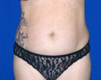 Body Contouring Case 2371 - Tummy Tuck, Flanks, Hips - Before