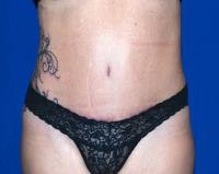Body Contouring Case 2371 - Tummy Tuck, Flanks, Hips - After