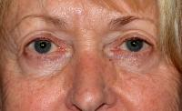 Facial Surgery Case 2421 - Eyelid Surgery - Before