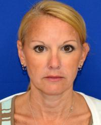 Facial Surgery Case 2481 - Neck Lift - After