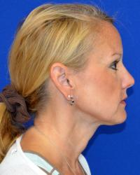 Facial Surgery Case 2481 - Neck Lift - After