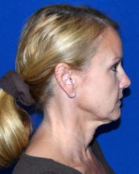 Facial Surgery Case 2481 - Neck Lift - Before