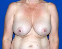 Breast Surgery Case 2491 - Breast Lift - Before
