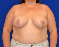Breast Surgery Case 2501 - Breast Reduction - After