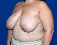 Breast Surgery Case 2501 - Breast Reduction - Before