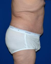 Body Contouring Case 351 - Tummy Tuck - After