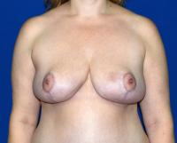 Breast Surgery Case 381 - Breast Reduction - After