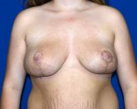 Breast Surgery Case 391 - Breast Reduction - After