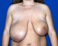 Breast Surgery Case 391 - Breast Reduction - Before