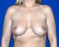 Breast Surgery Case 401 - Breast Reduction - After