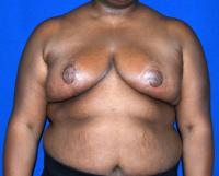 Breast Surgery Case 411 - Breast Reduction - After
