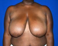 Breast Surgery Case 411 - Breast Reduction - Before