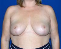 Breast Surgery Case 431 - Breast Reduction - After