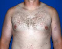 For Men Case 451 - Male Breast Reduction - After