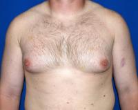 For Men Case 451 - Male Breast Reduction - Before