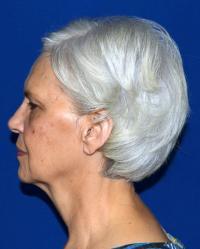 Facial Surgery Case 471 - Face Lift - Before
