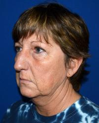 Facial Surgery Case 481 - Face Lift - Before