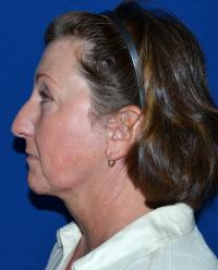 Facial Surgery Case 481 - Face Lift - After