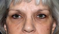Facial Surgery Case 491 - Brow Lift - After