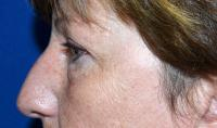 Facial Surgery Case 501 - Brow Lift - Before